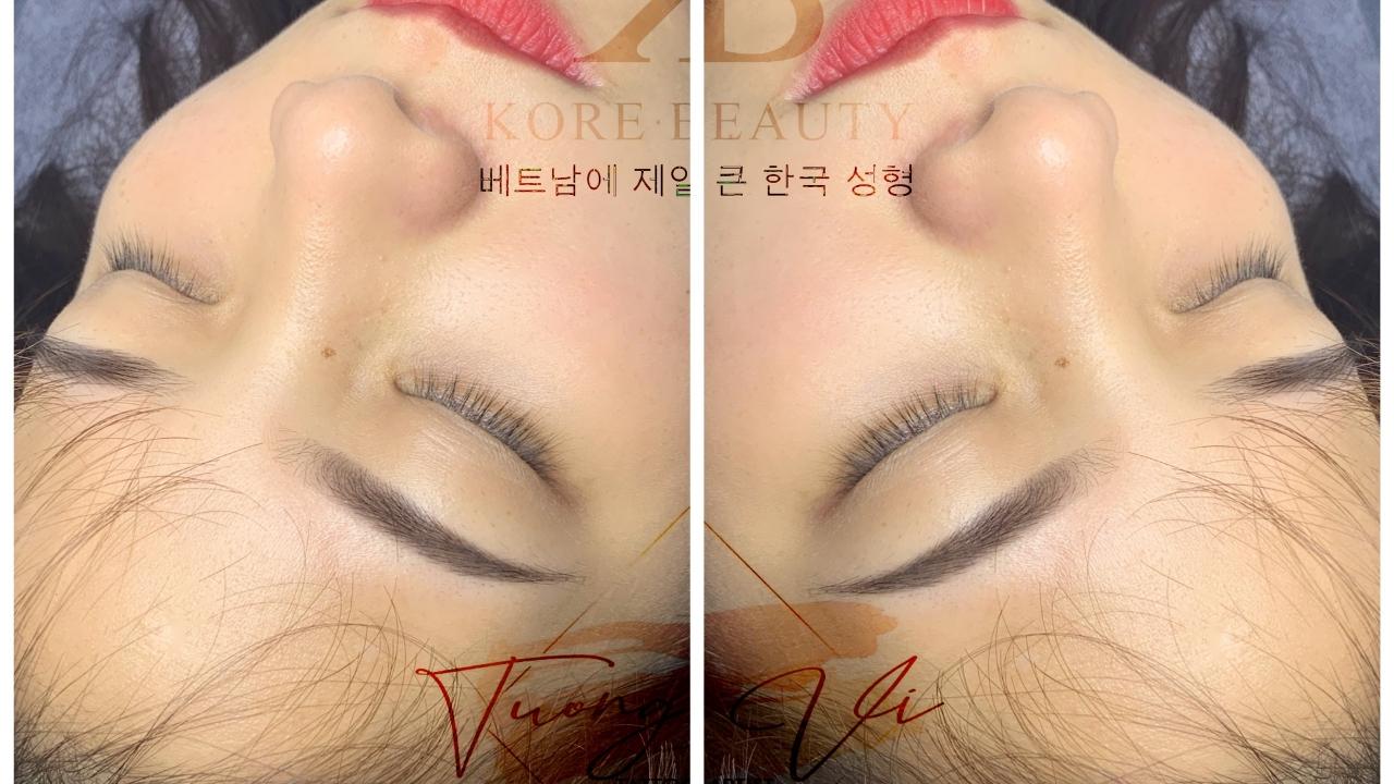 Kore Beauty Hà Cối